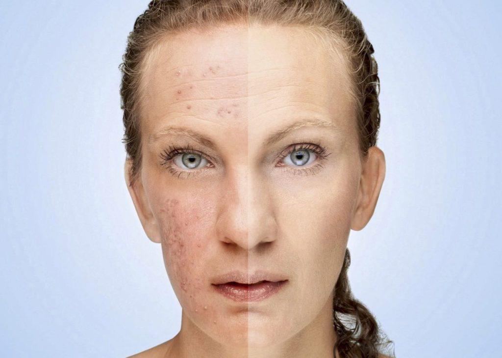 Cliquez ici pour aller découvrir l'alimentation à mettre en place contre l'acné